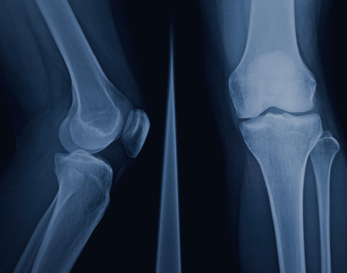 Partial and<br>Total Knee<br>Replacement